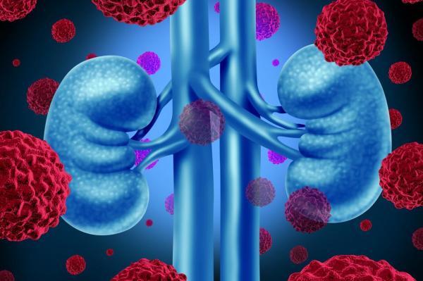 METEOR: Cabozantinib Improves Survival in Advanced Kidney Cancer